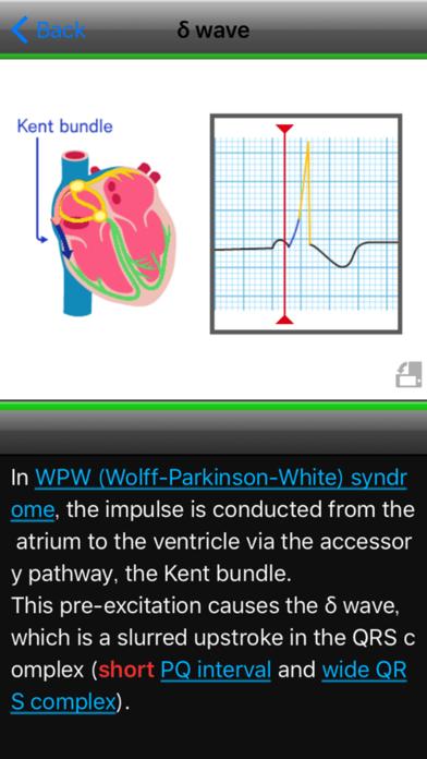 らくらく心電図トレーニング(英語モード付き) ScreenShot2