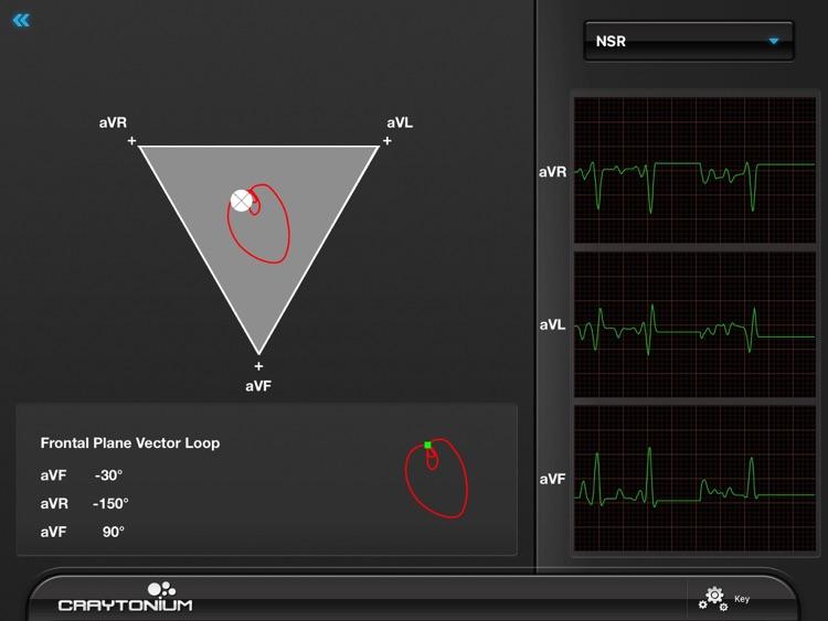 Craytonium ECG screenshot-3