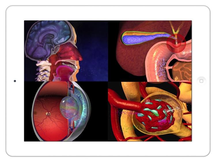 Anatomy Atlas: 3D Anatomical Model and Animation screenshot-4