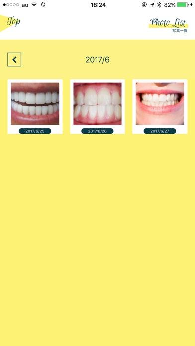 Smile Cosmetique  白い歯日記のスクリーンショット5