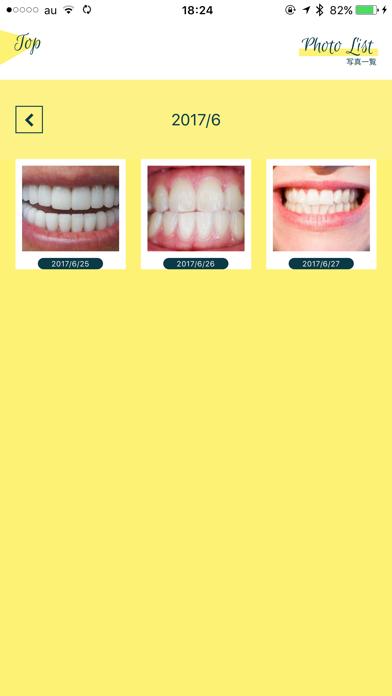 Smile Cosmetique  白い歯日記のおすすめ画像5