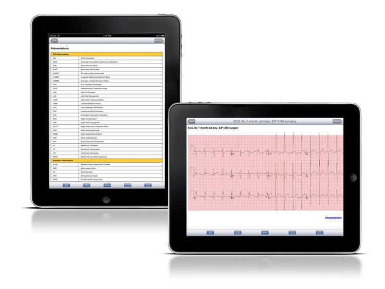 ECG: Paediatric Quiz screenshot-3