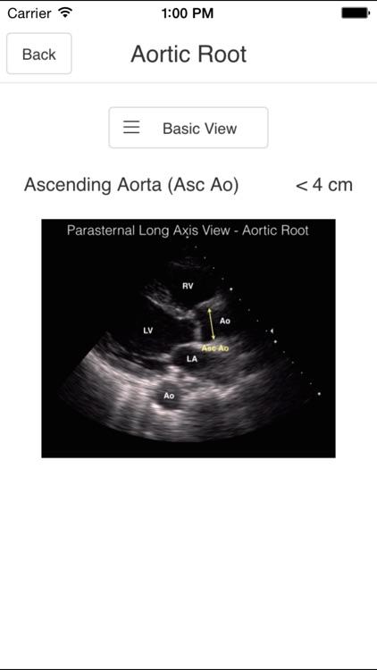 Pocket Emergency Ultrasound screenshot-3