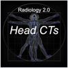 Radiology 2.0: Head CTs