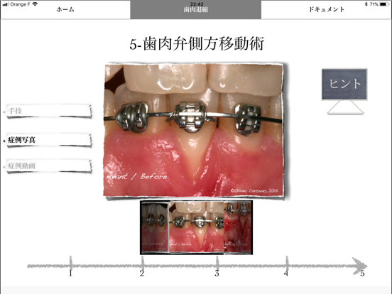 iMuco Récessions gingivalesのおすすめ画像3