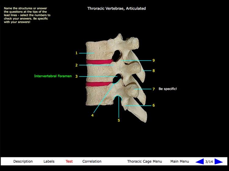 Gross Anatomy of the Skeleton screenshot-3