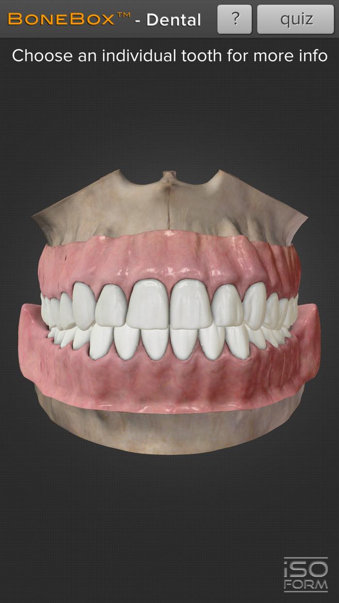BoneBox™ - Dental Lite Screenshot
