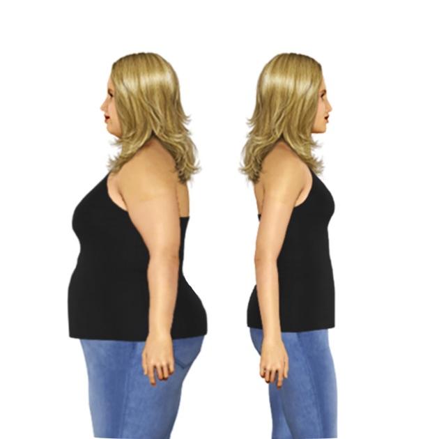 weight loss purpura backa kaina