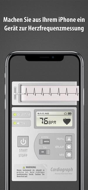 Apples Herzstudie: Smartwatch soll auf Herzrhythmusstörungen