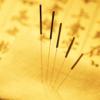 中国中医针灸学 - 人体针灸经络穴位图解,传承针灸养生疗法