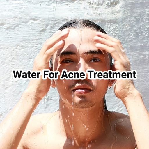 Water For Acne Treatment