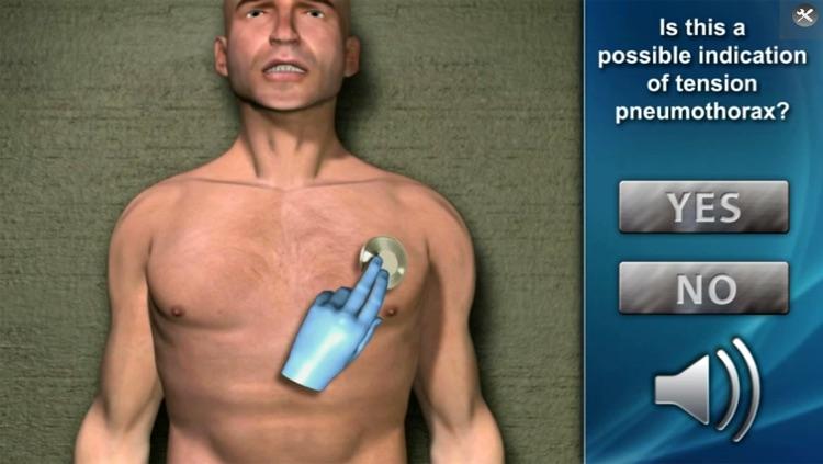 Medrills: NCD for Pneumothorax screenshot-3