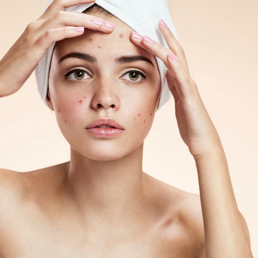 Prevent Acne:Guide and Tips icon