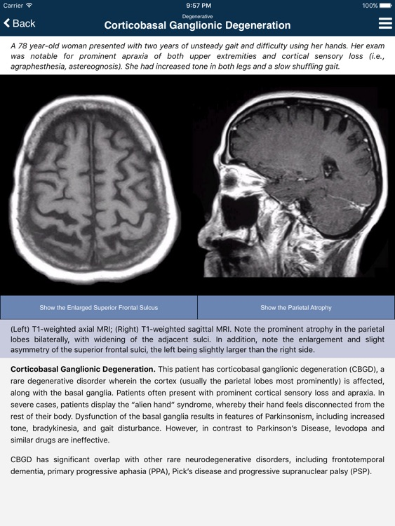 Nina: Neuroimaging In Neurology App (Full Version) screenshot-4
