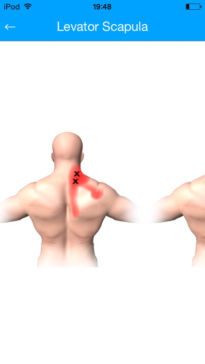 Muscle Trigger Points Massage Therapy screenshot-4