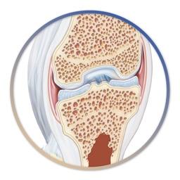 Miniatlas Joint Diseases