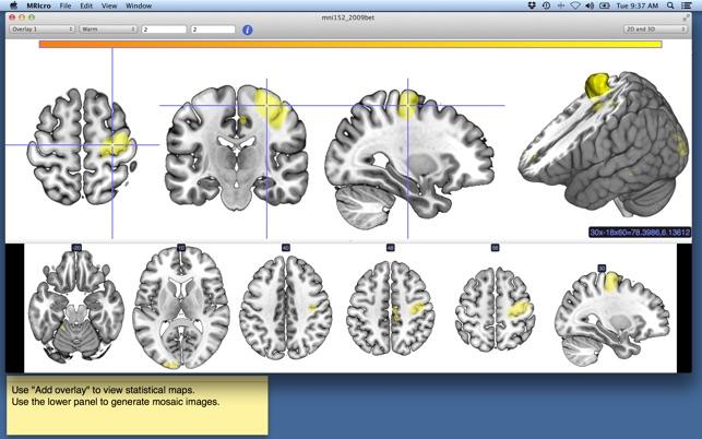 MRIcro on the Mac App Store