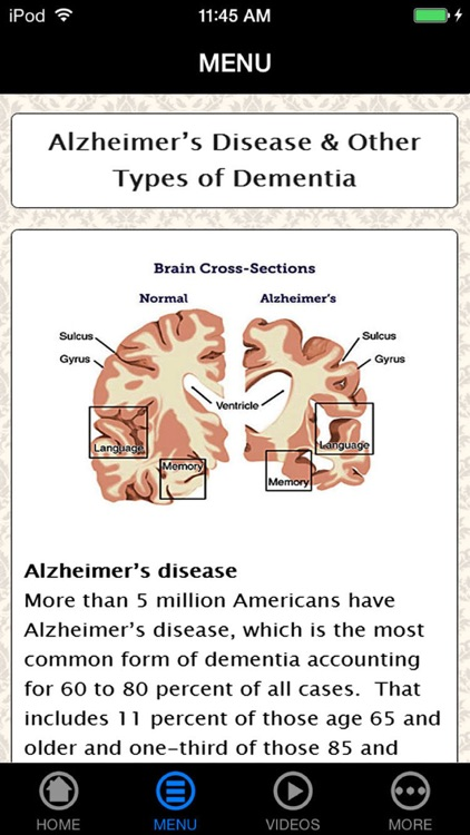 How to Avoid, Find & Cope with Alzheimer's Disease for Beginners to Experience - Understanding Alzheimer's Right screenshot-3
