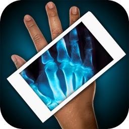 Simulator X-Ray Hand