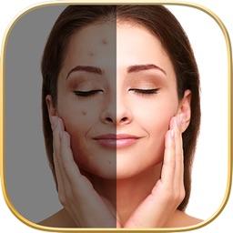 Beauty Face - Pimple Eraser