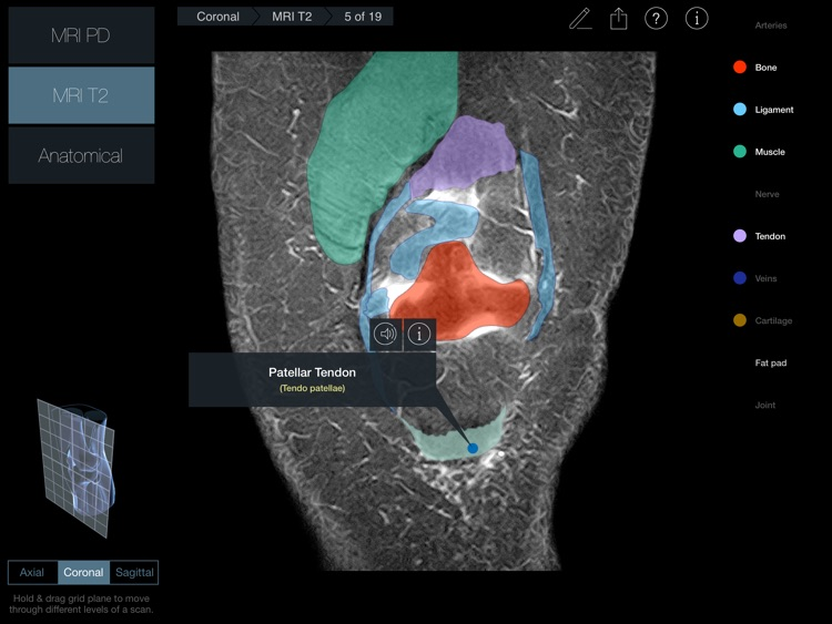 Radiology - Knee screenshot-3