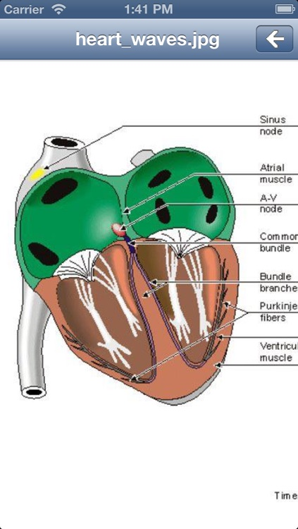 EKG Academy: Electrocardiogram Study Guide screenshot-3