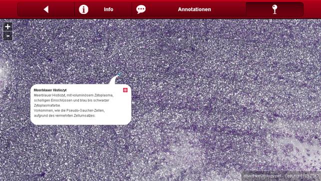 Smart Hematology Screenshot