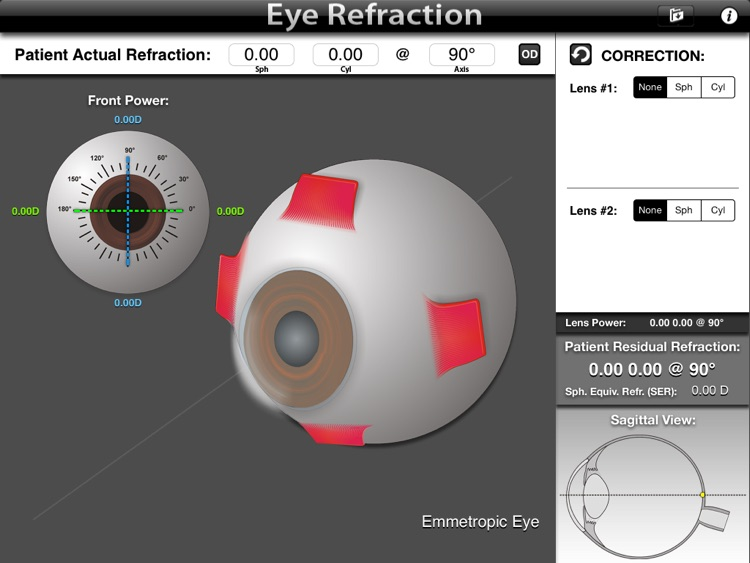 Eye Refraction