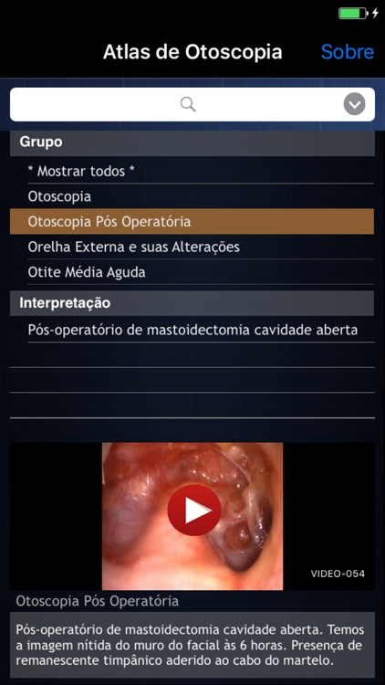 Atlas de Otoscopia