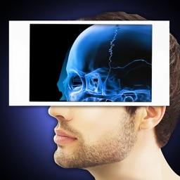 Xray Scanner Head Prank