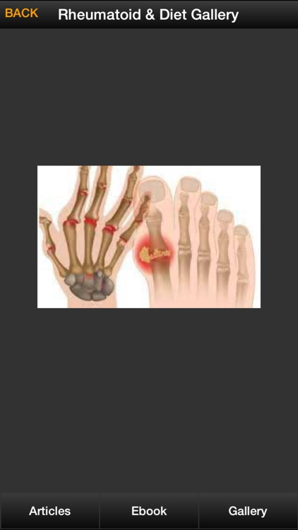 Rheumatoid Arthritis Guide - How To Relief Rheumatoid Arthritis Naturally screenshot-3