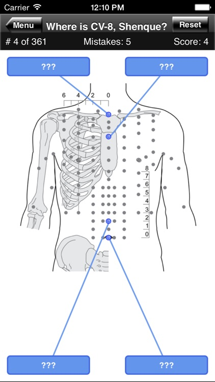 Acupuncture Points Body Quiz screenshot-1