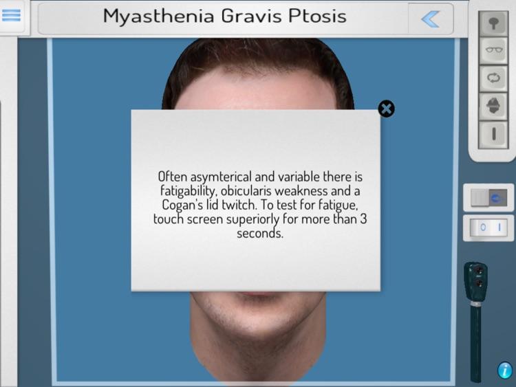 NeuroOphthal screenshot-4