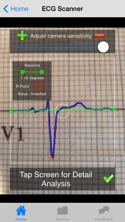 Doctor ECG - ECG Scanner, Guide and Calculator