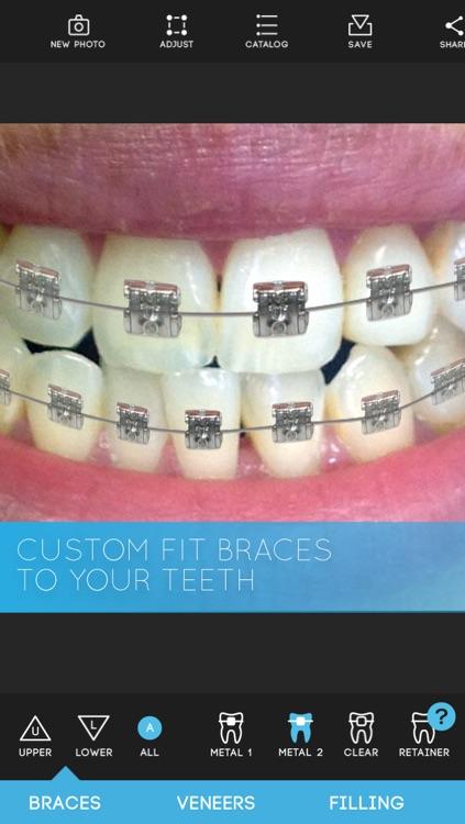 Virtual Dentist