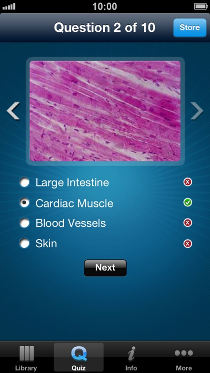 Histology - A reference guide for Pathology, Biology, Pharmacology students screenshot-3