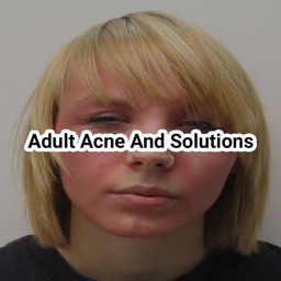 Adult acne and solutions