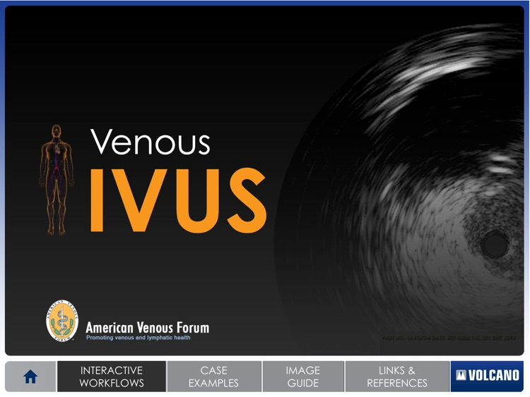 Venous IVUS