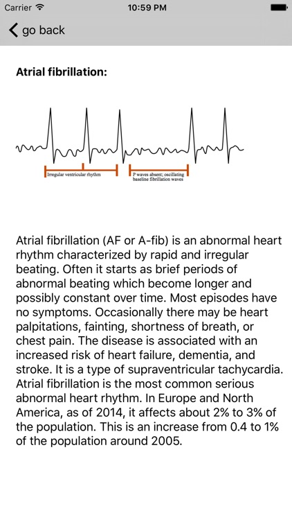 Learn ECG screenshot-2