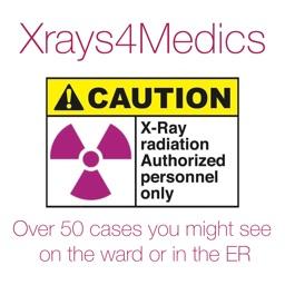 Xrays4Medics