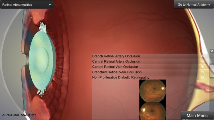 Eye Anatomy screenshot-3