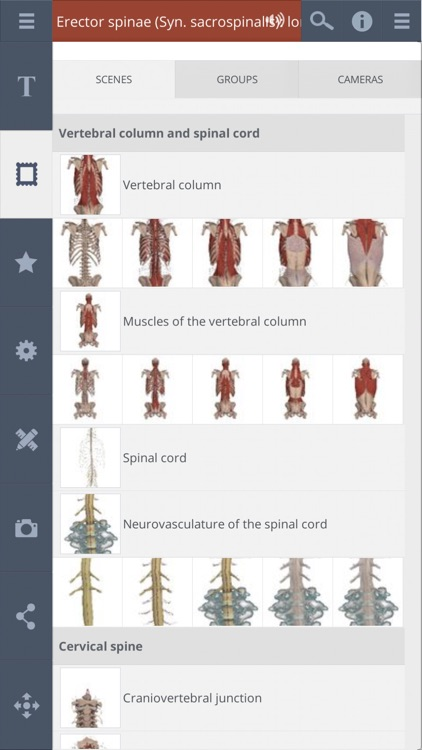Spine: 3D Real-time