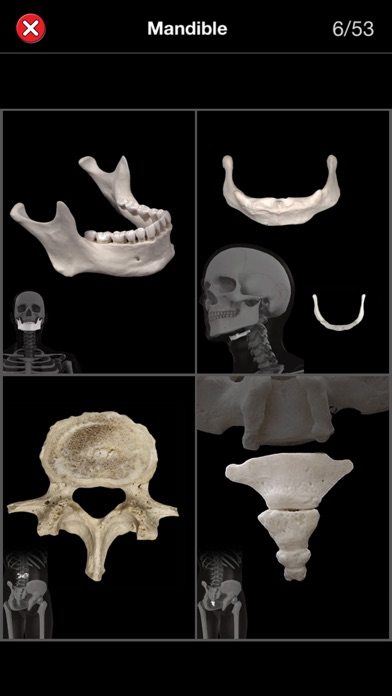 Anatomy Quiz Pro review screenshots