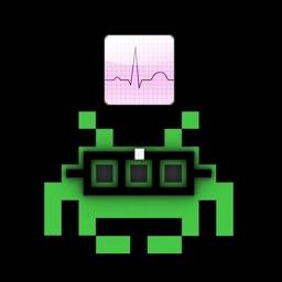 ECG Types Electrocardiogram by MIGUEL ANGEL GARCIA VAZQUEZ
