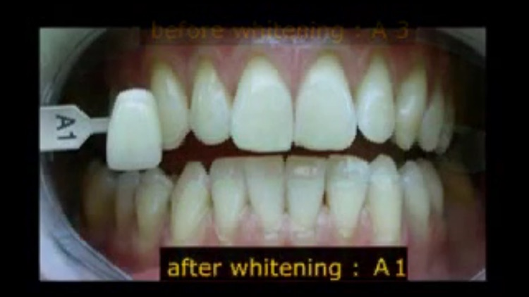 Teeth Whitening Techniques