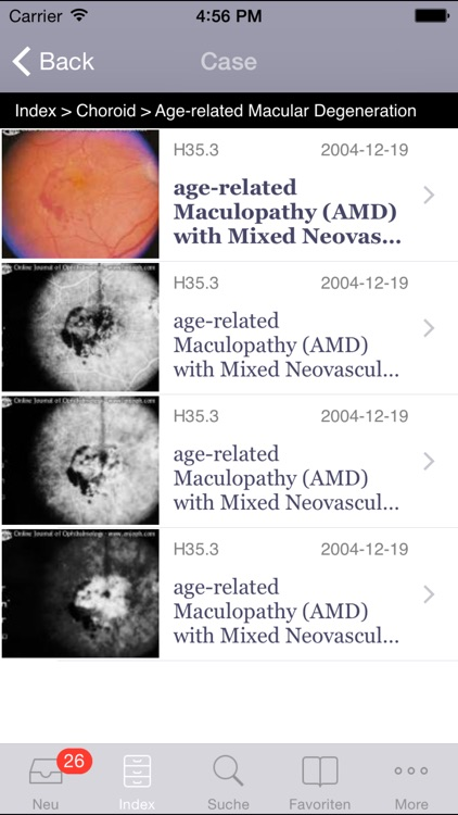 Atlas of Ophthalmology by Onjoph
