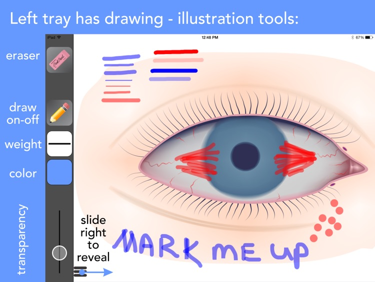 Ophthalmic Media Library screenshot-0