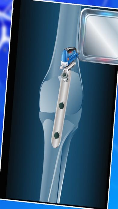 膝の手術 - クレイジー小さな外科医のための仮想医師&病院のゲームのスクリーンショット4