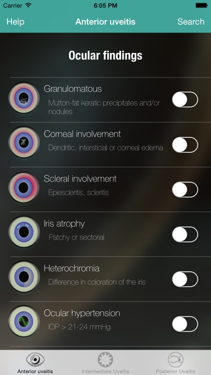 Uveitis doctor screenshot-1
