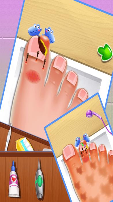 Nail doctor : Kids games toe surgery doctor games screenshot three